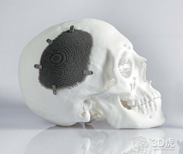 KCE:3D打印植入物并不比传统植入物更好或更便宜