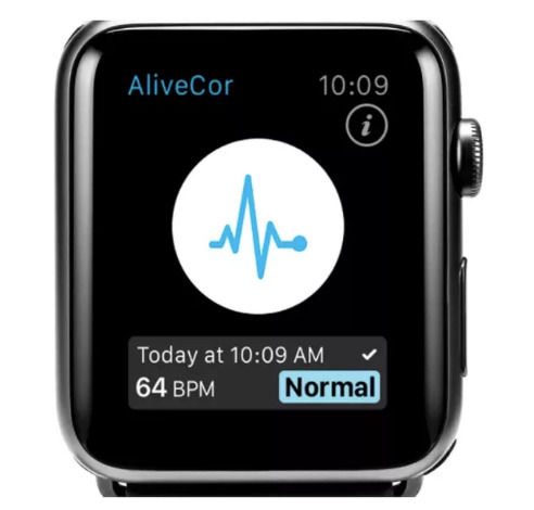 Apple Watch腕带传感器声称可以检测血液中的钾