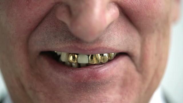 从大金牙说起:金属材料在医学领域应用