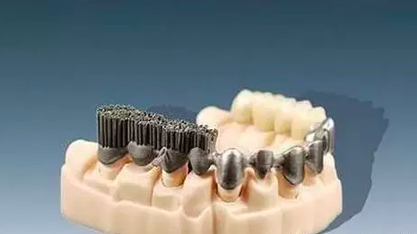 影响3D打印的口腔修复体精密度的因素