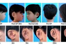 3D打印技术为小耳畸形儿童打造人造耳朵